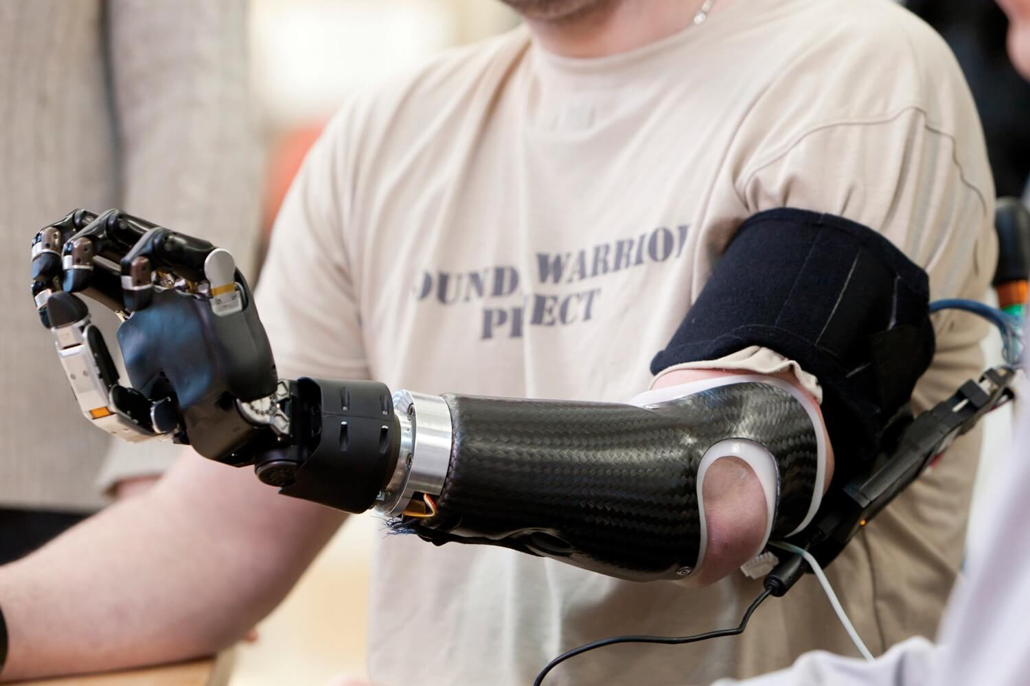 How Does Medicare Cover Prosthetic Devices? - Infosecbuddy |